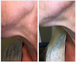 Kybella Treatments at Sun Dermatology in Panama City