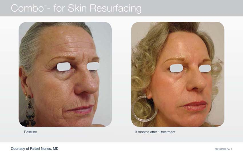 Acupusle Laser Treatments in Panama City at Sun Dermatology