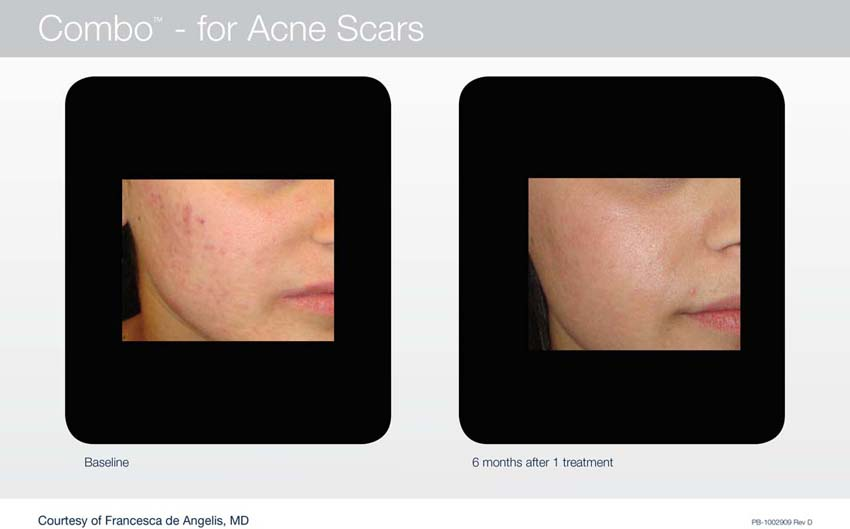 Acupusle Laser Treatments in Panama City at Sun Dermatology