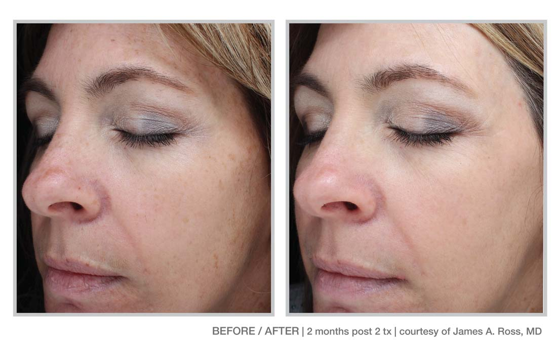 Halo Laser and BBL Laser Treatments in Panama City at Sun Dermatology