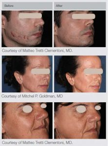 M22 Laser Treatments in Panama City at Sun Dermatology