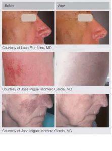 M22 Laser Treatments in Panama City at Sun Dermatology