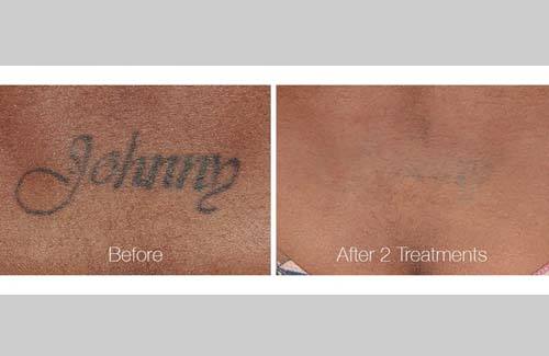 Tattoo Removal in Panama City, Florida at Sun Dermatology