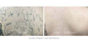 Tattoo Removal in Panama City, Florida at Sun Dermatology